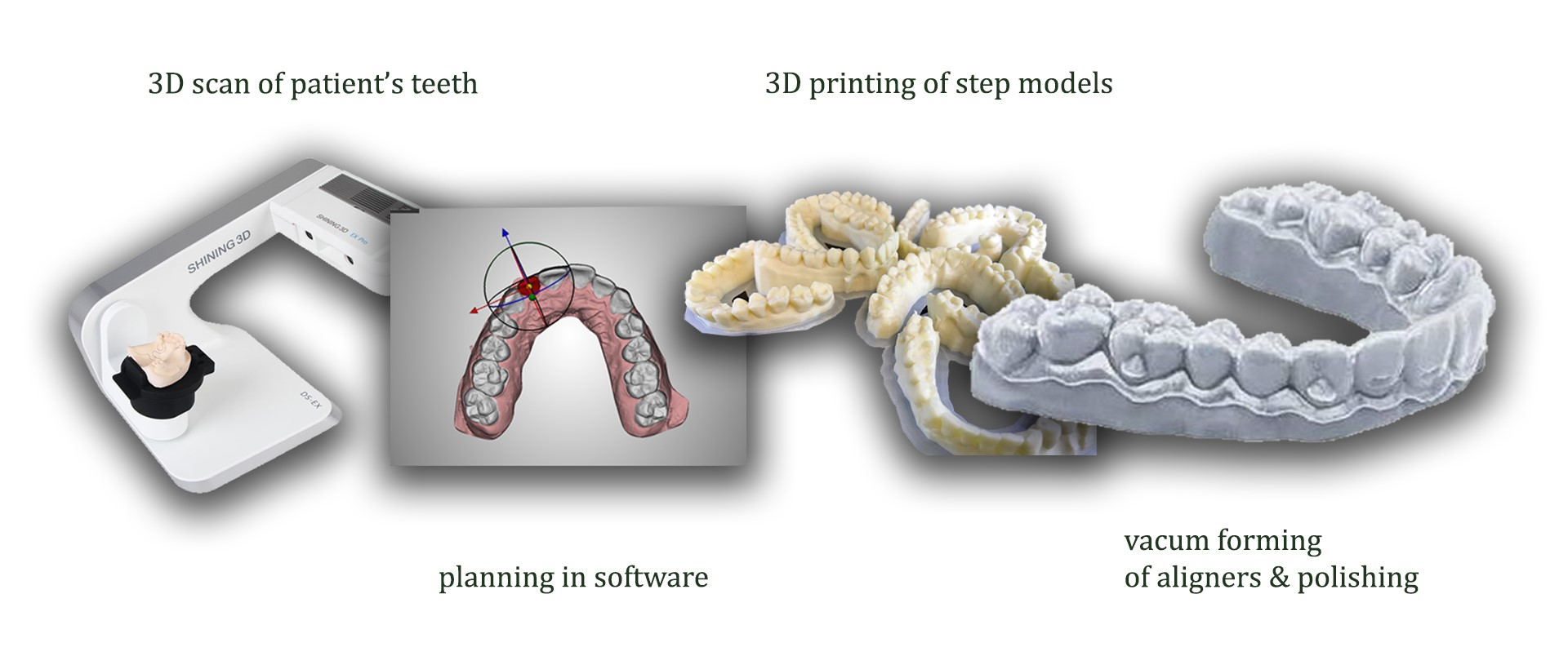 The entire process of aligner production